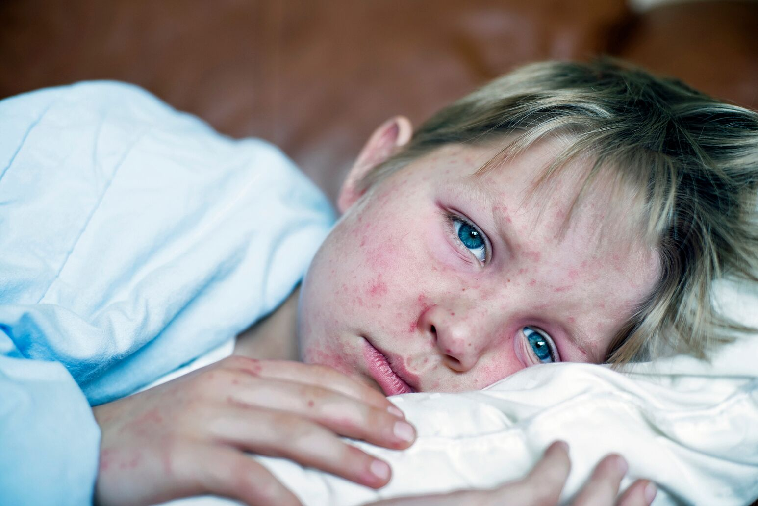 A child lies down with measles