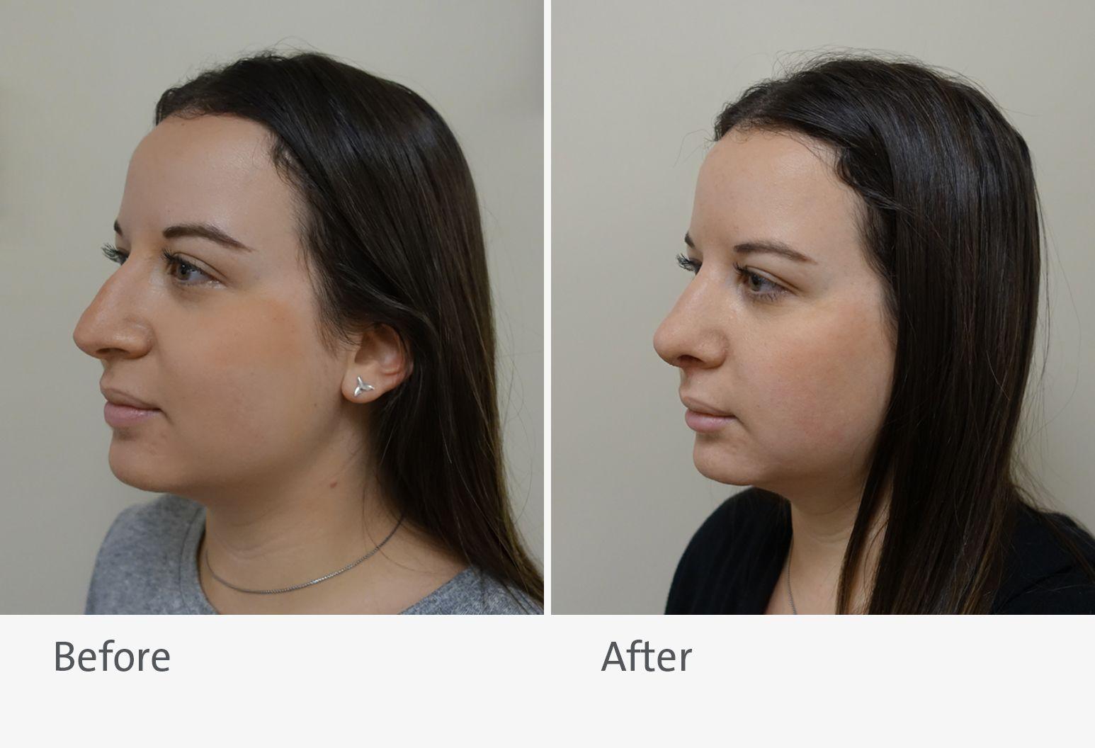 A patient is shown before and after rhinoplasty surgery. On the left is the patient before surgery and on the right is the patient after surgery.