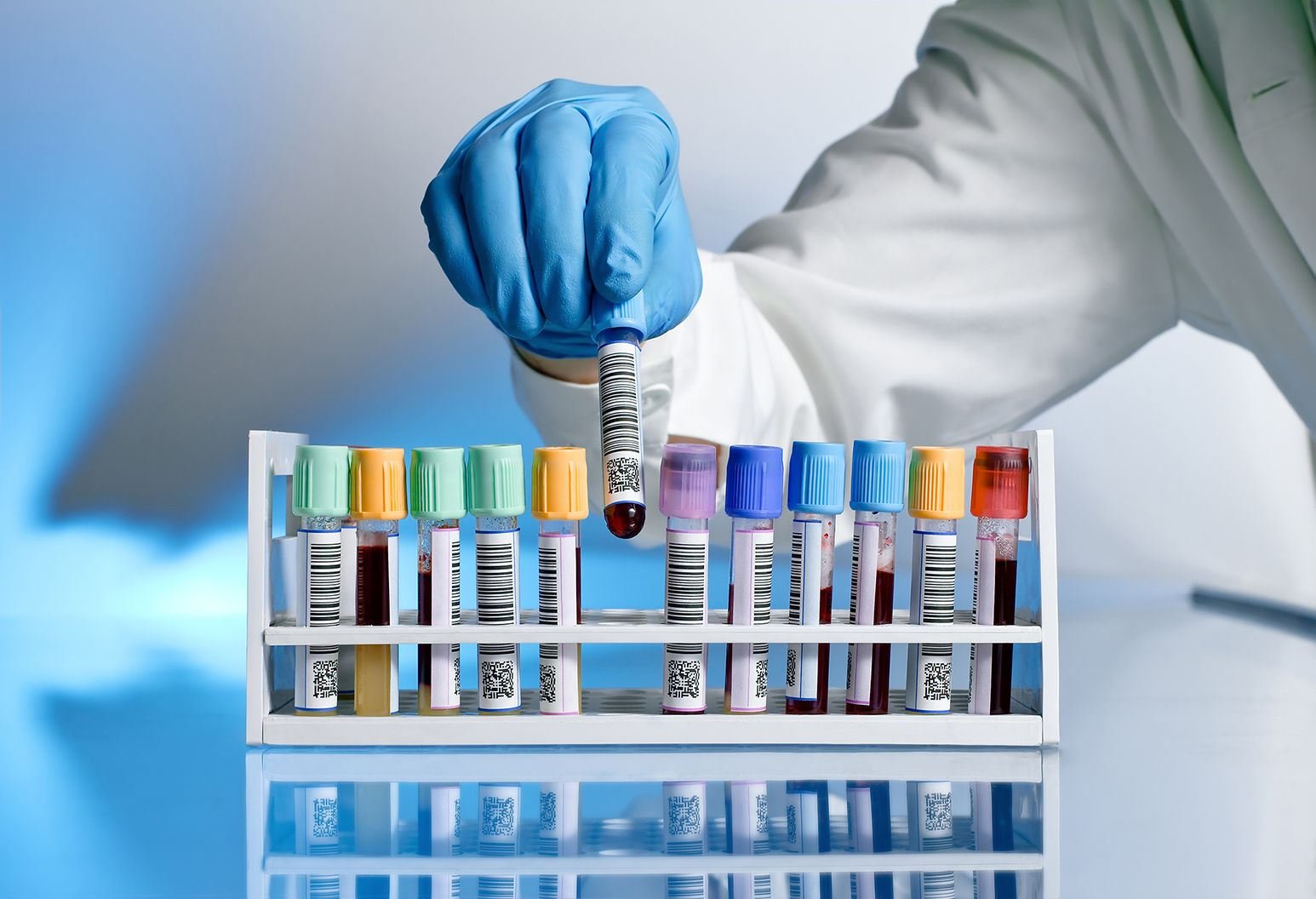 Several colorful vials of blood are next to eachother in a testube holder. One vial is being picked up by a lab technician with blue gloves.