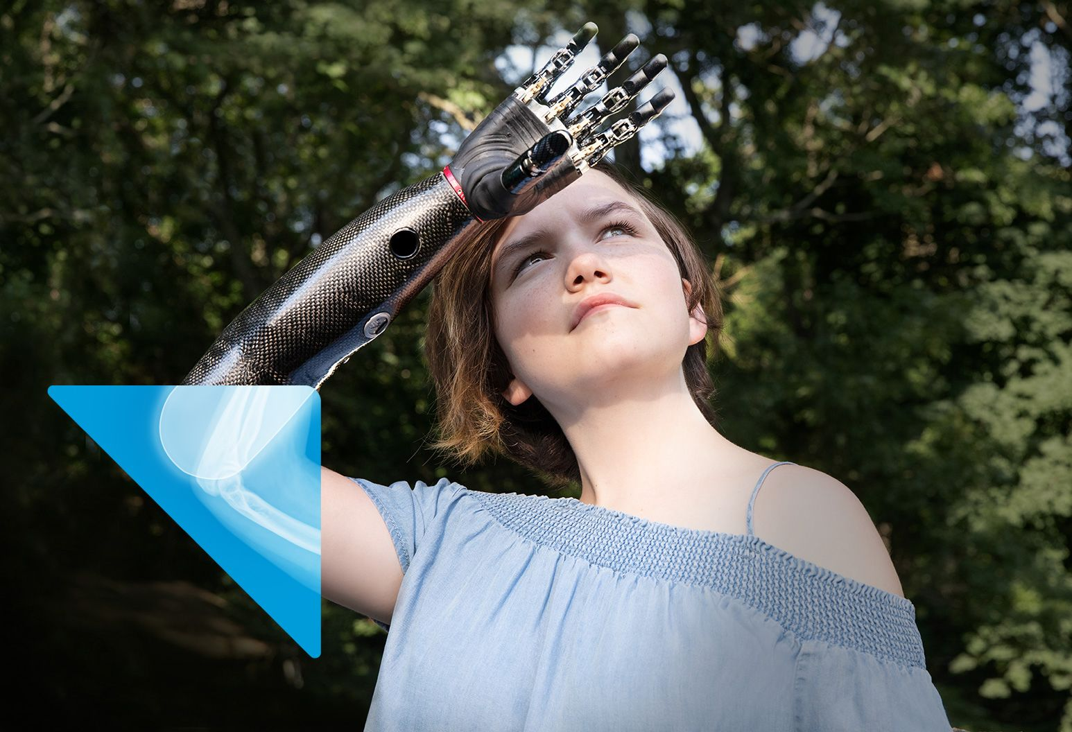 A girl with a prosthetic arm raised above her forehead standing with a background of trees.