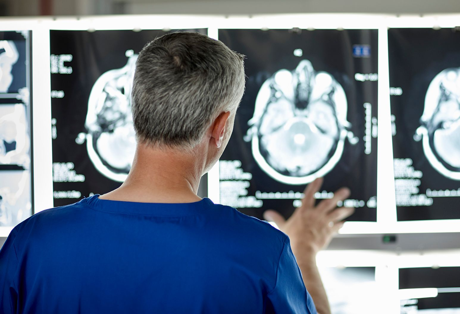 Radiologist looking at brain scans