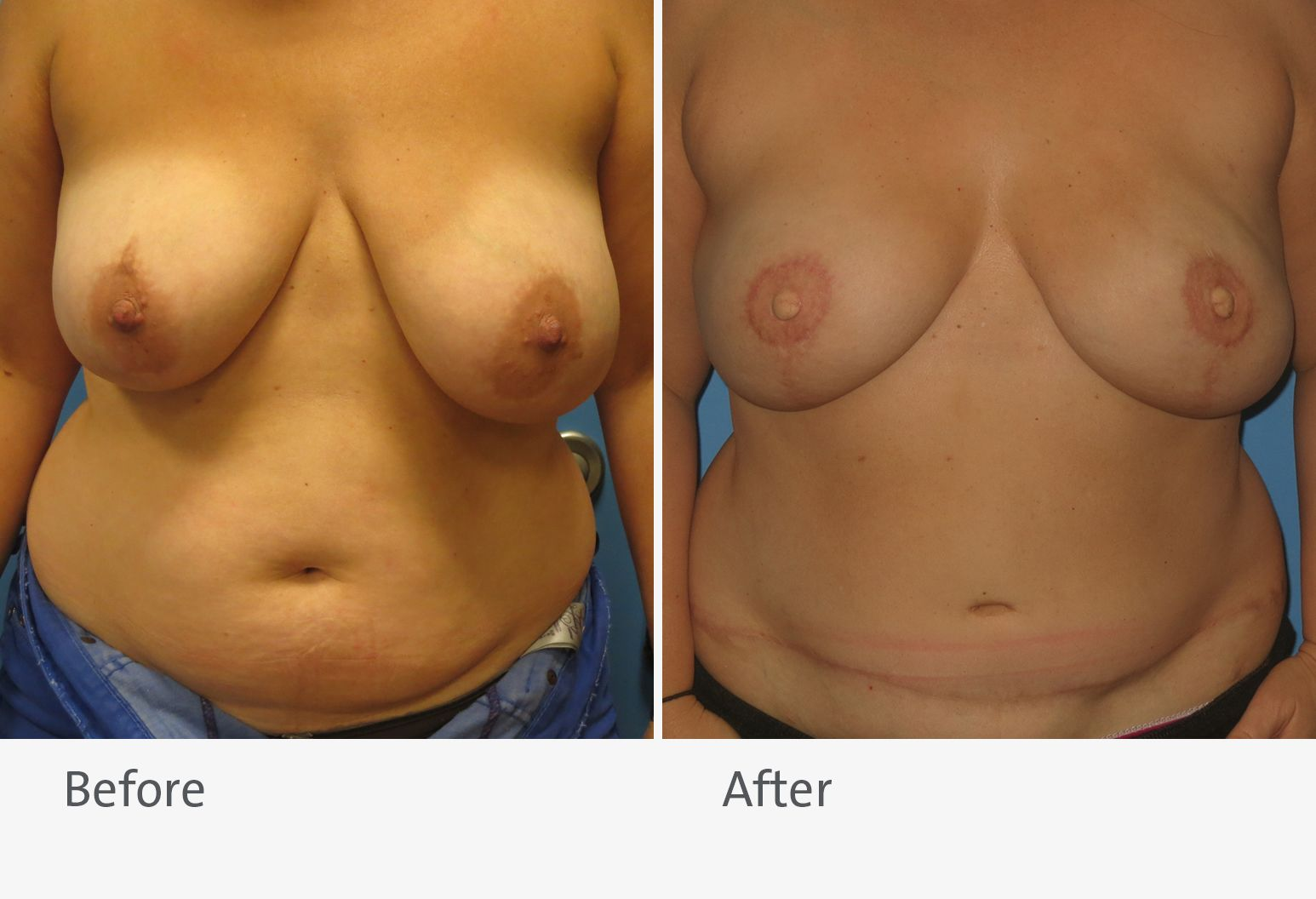 A patient is shown before and after breast reconstruction with a DIEP flap. On the left is the patient before the surgery with slightly uneven breasts, and on the right is the patient after surgery with smaller, more even breasts.