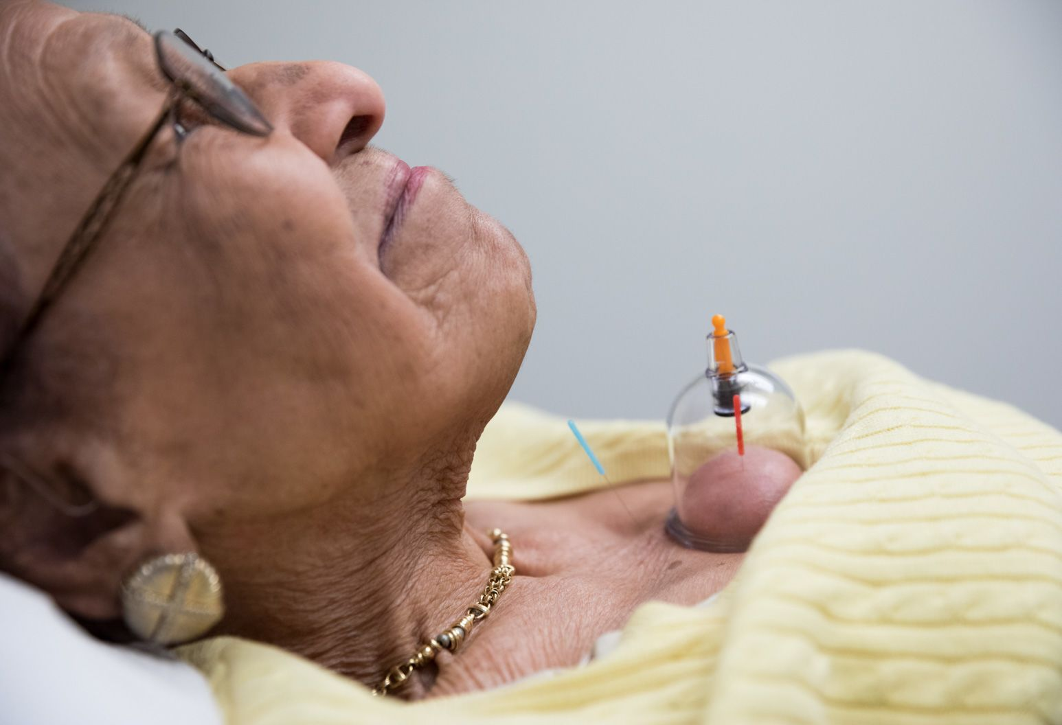 Older woman laying down, eyes closed, with acupuncture needles on her chest.