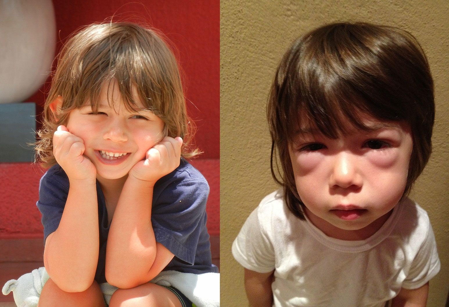 A photo comparison of a young boy smiling with long hair versus him with swollen eyes and a sad look in another photo.