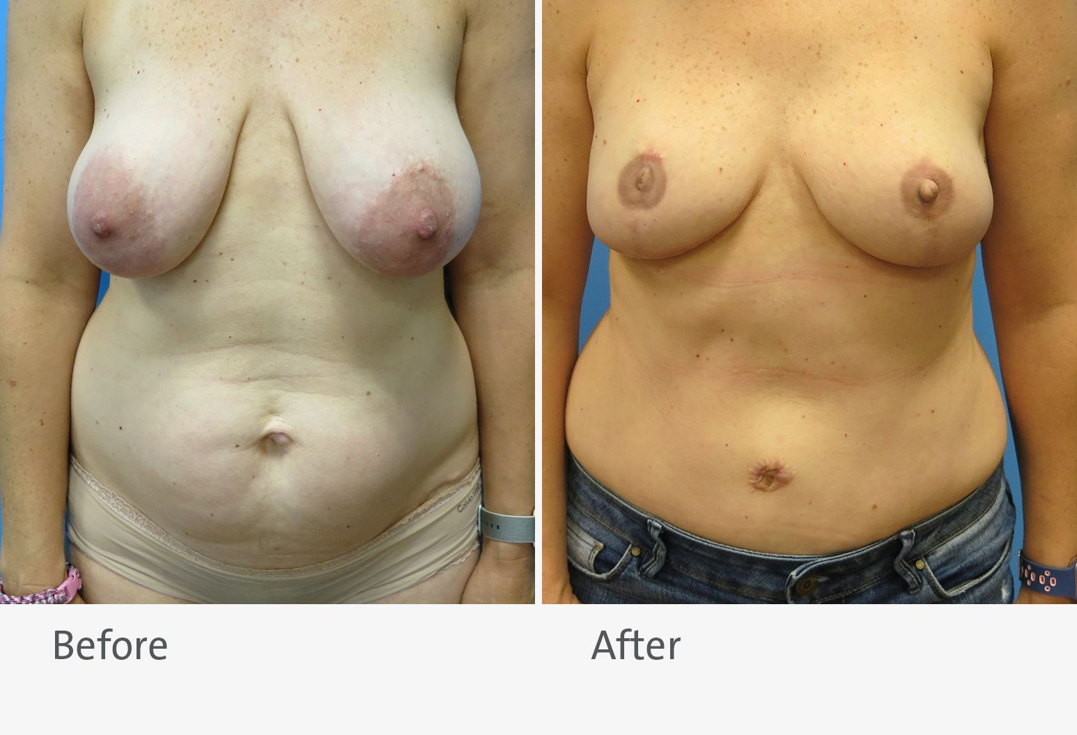 A patient is shown before and after breast reconstruction with a DIEP flap. On the left is the patient before the surgery with large, drooping breasts, and on the right is the patient after surgery with smaller breasts.
