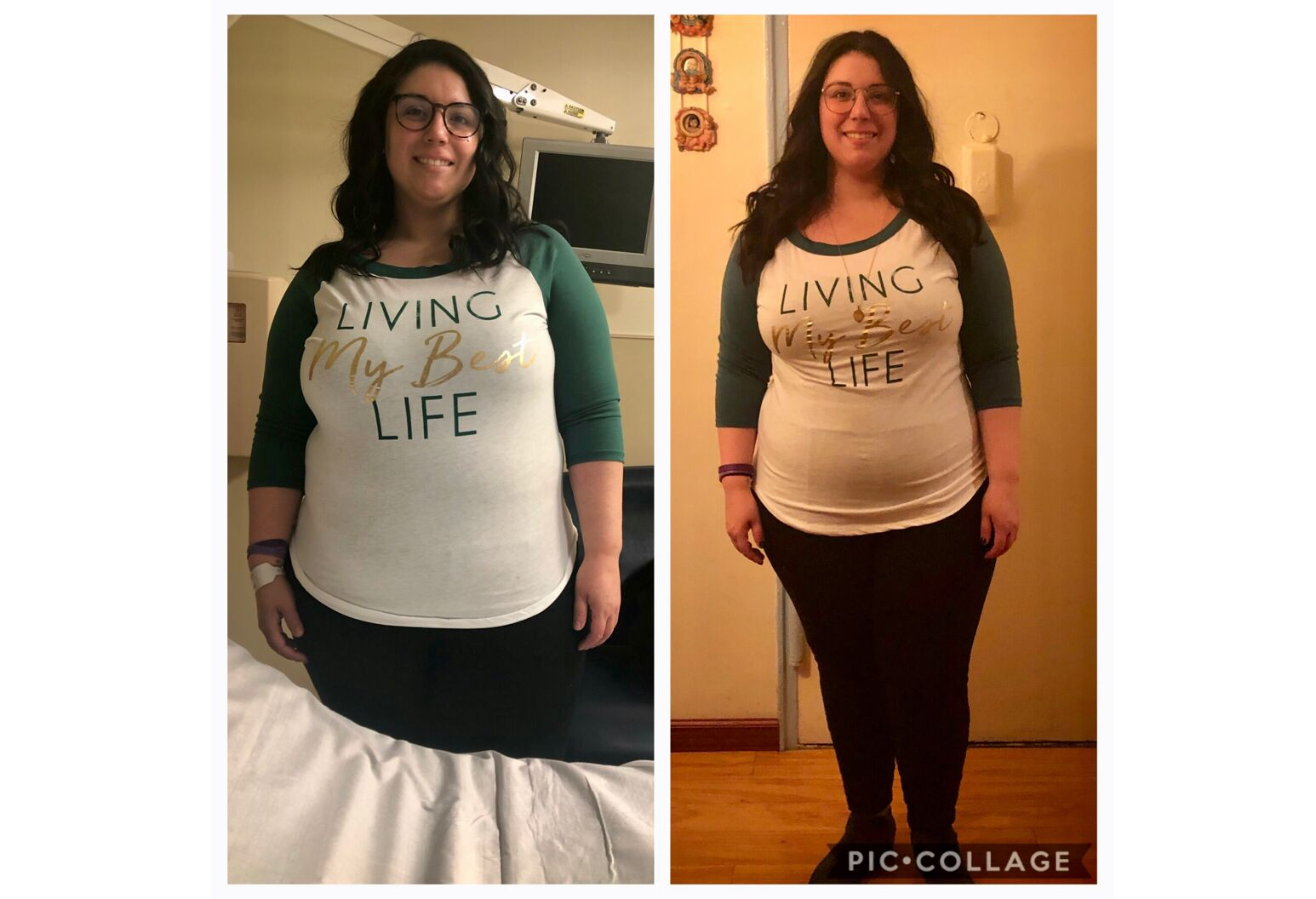 Kimberly before surgery on the left and four-weeks after surgery on the right