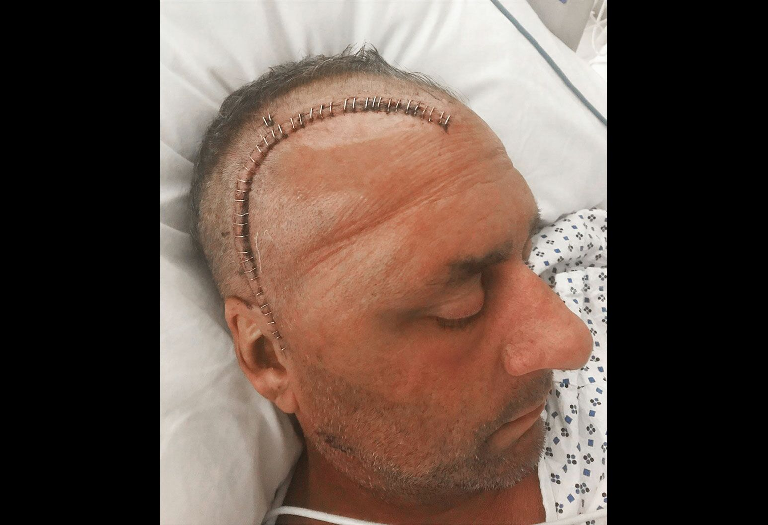 A man with a half shaven head rests his head on a pillow. Along his scalp is staples over a recently sutured wound.