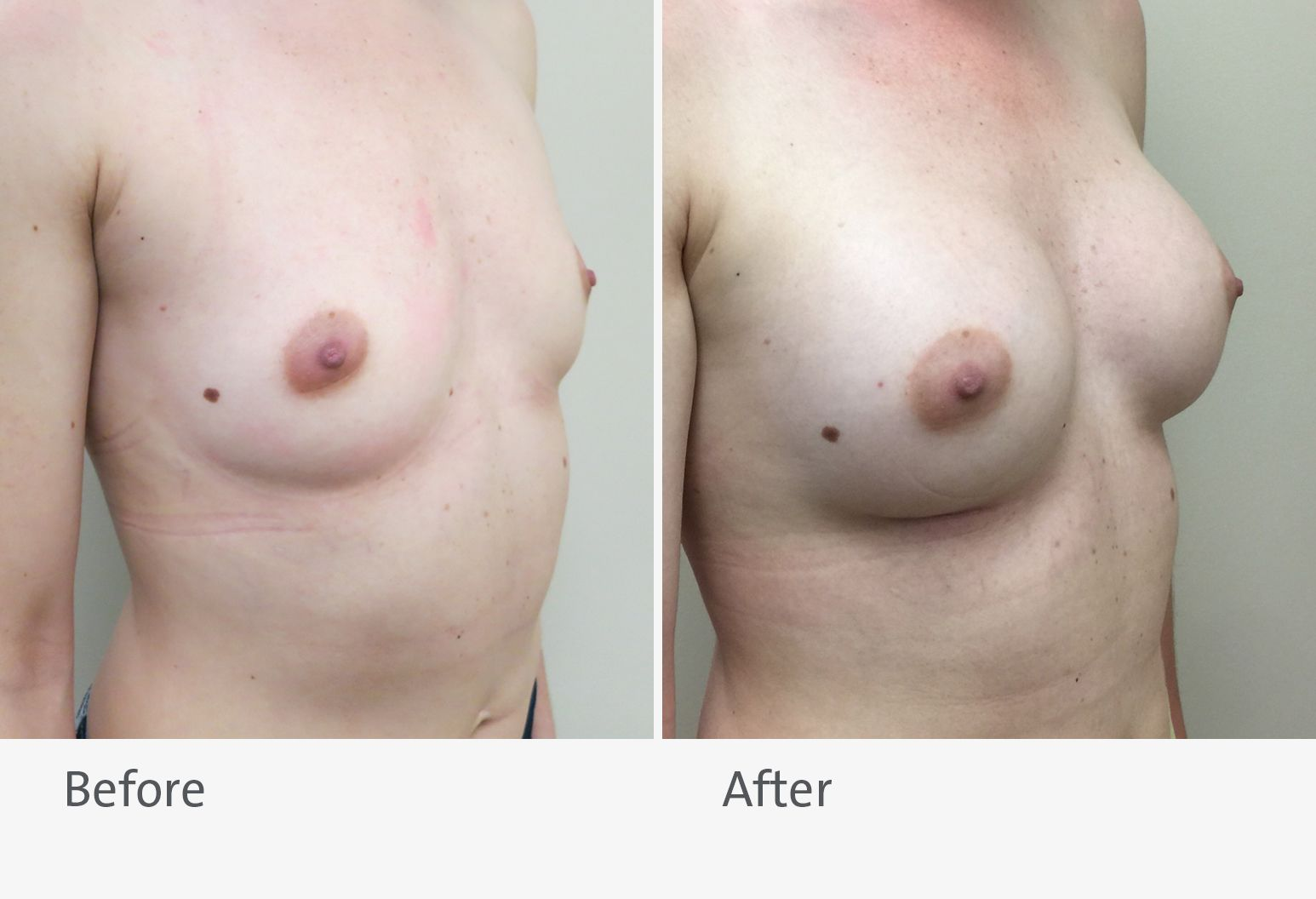 A patient is shown before and after a breast augmentation. On the left is the patient before the surgery and on the right is the patient after surgery with slightly larger breasts.