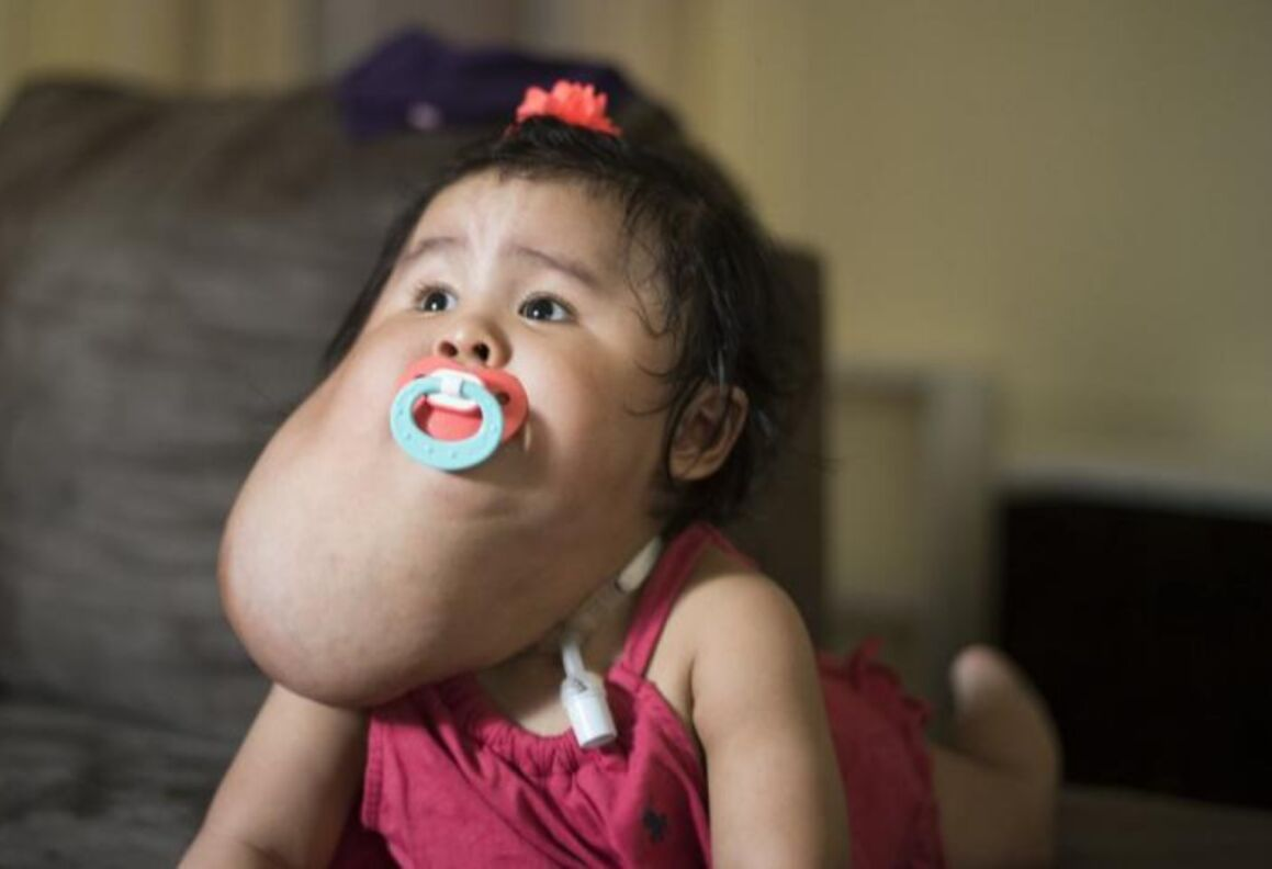 Sandy Diaz, toddler from Queens, was born with a large lymphatic malformation