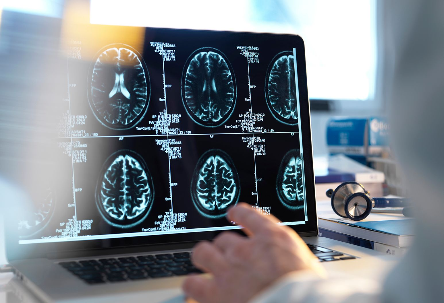 A doctor views a patient's brain scan on a computer screen.
