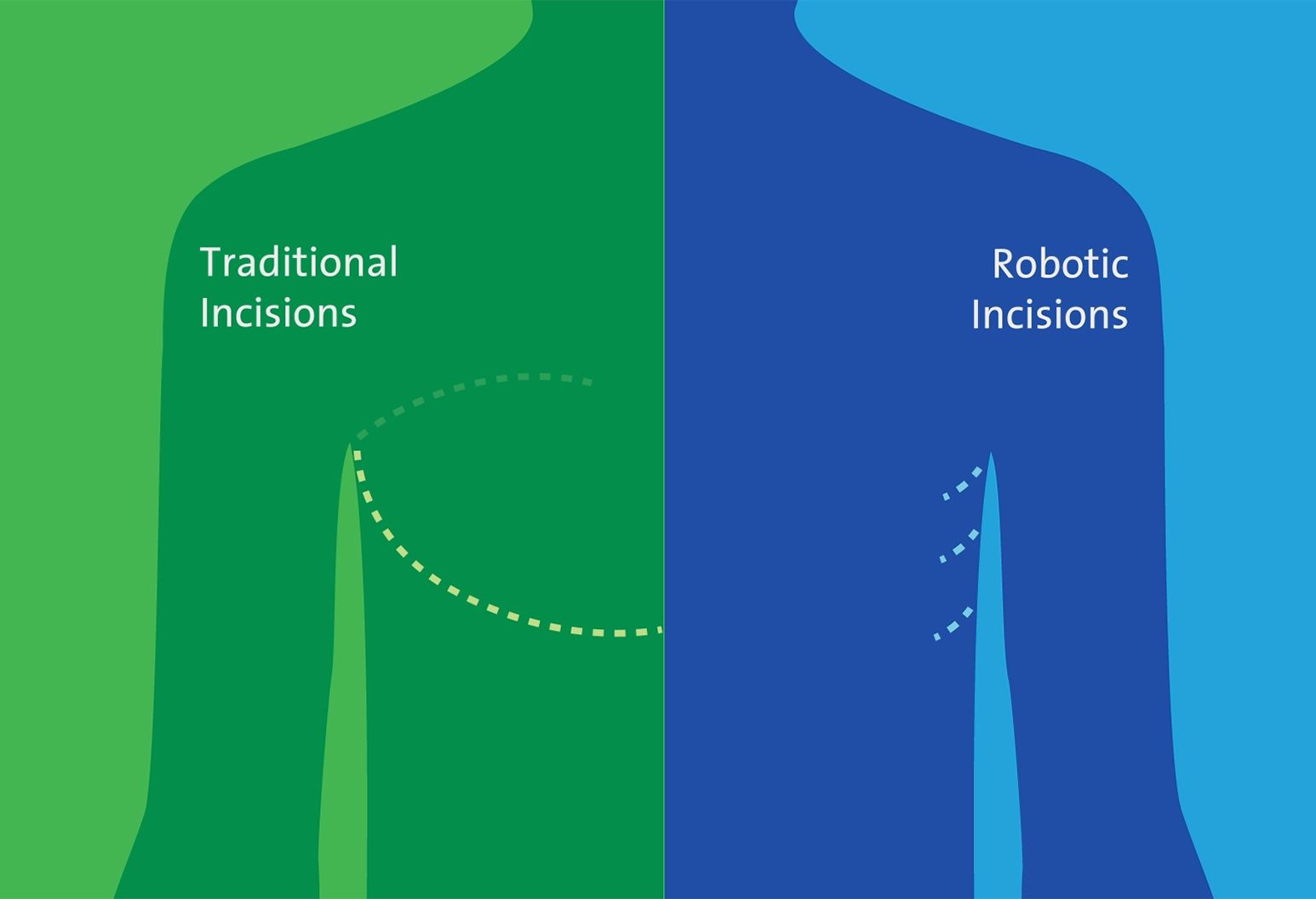 A diagram showing different incision points for lung cancer treatments.