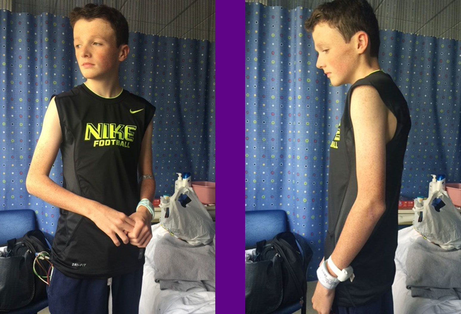 The front and side profiles of a very thin young teenage boy in a hospital room wearing a black tshirt.
