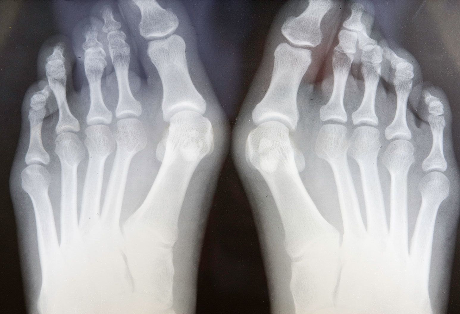 An x-ray image of two feet show a crooked bone protruding out from the inner side of the feet by the knuckle of each toe.