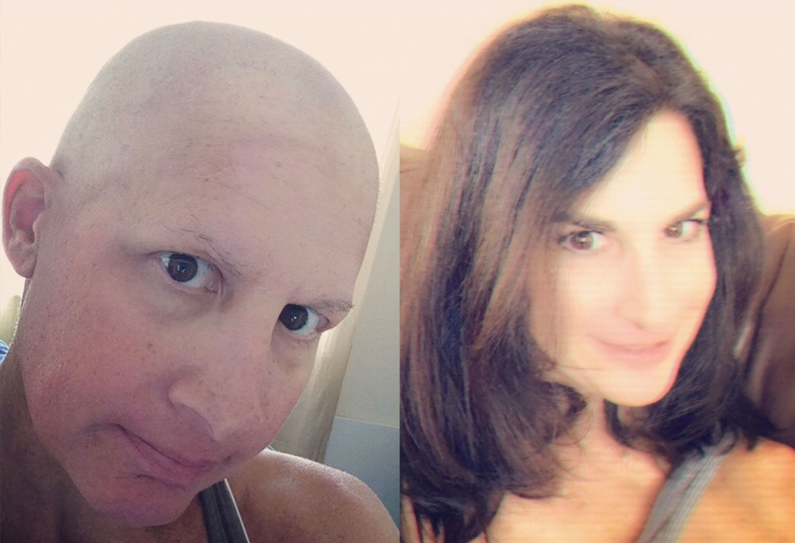 Side by side comparison of a woman with a shaved head and less eyebrows vs. a photo of her with long brunette hair.