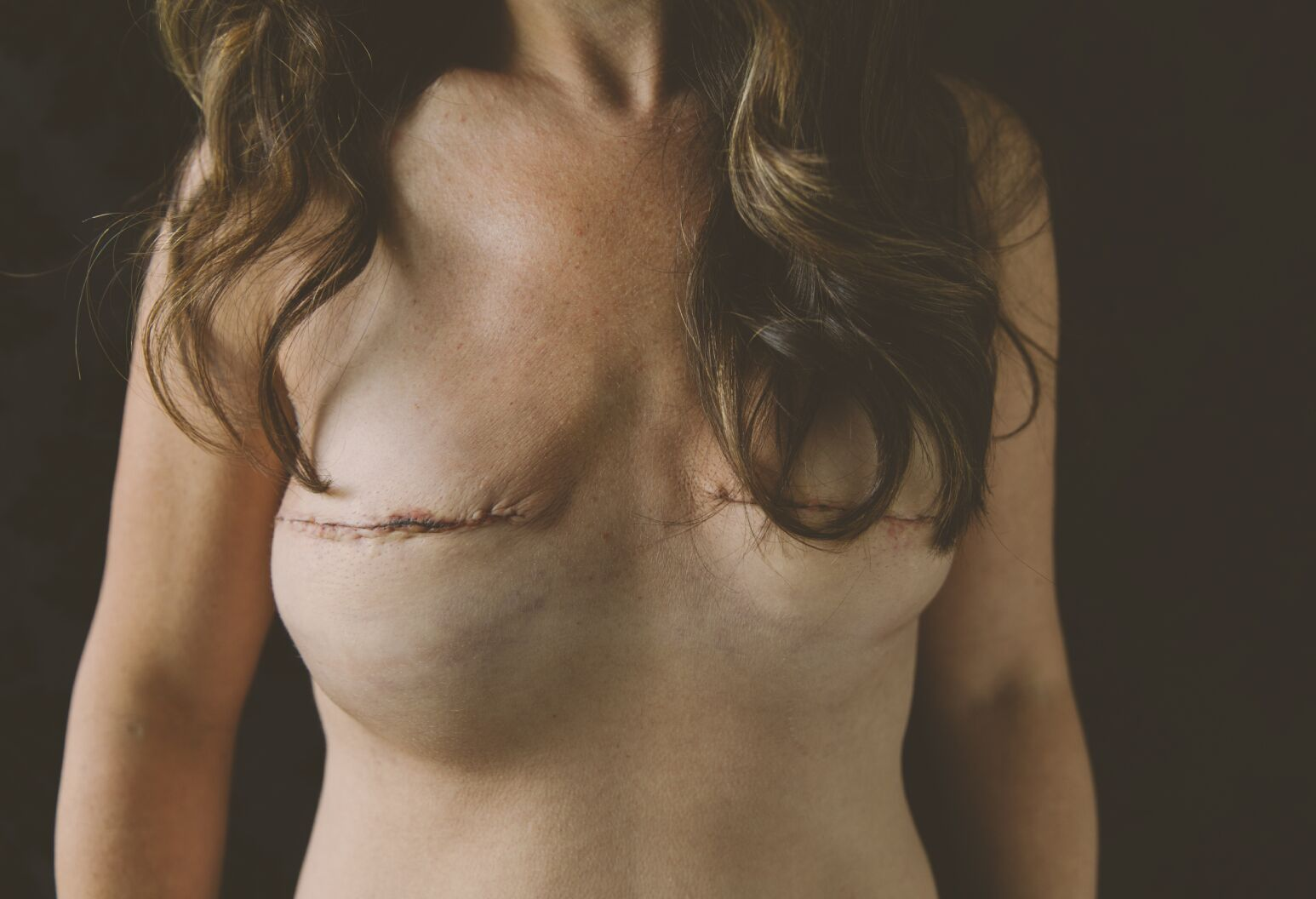 Post mastectomy and pre reconstruction