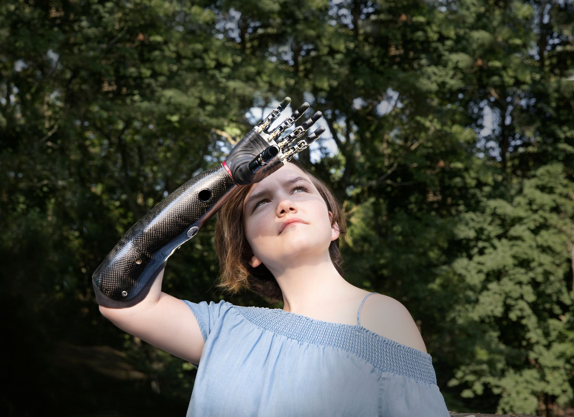 13-year-old girl using her bionic arm to block the sun from her eyes