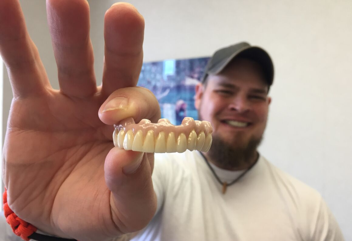 Dustin Kirby holds up his new teeth