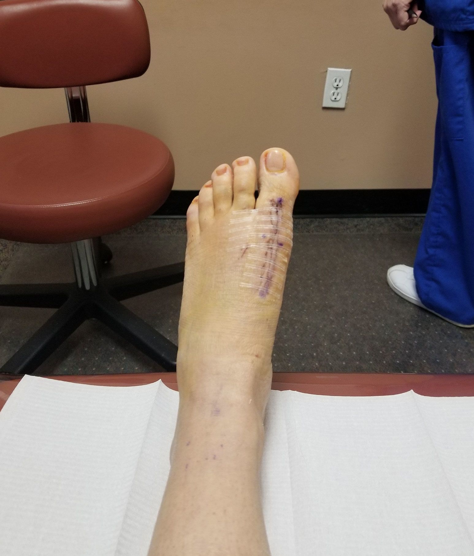 A foot rests over a white cover pointing towards the ceiling. The left foot has a huge scar with surgical tape over it.