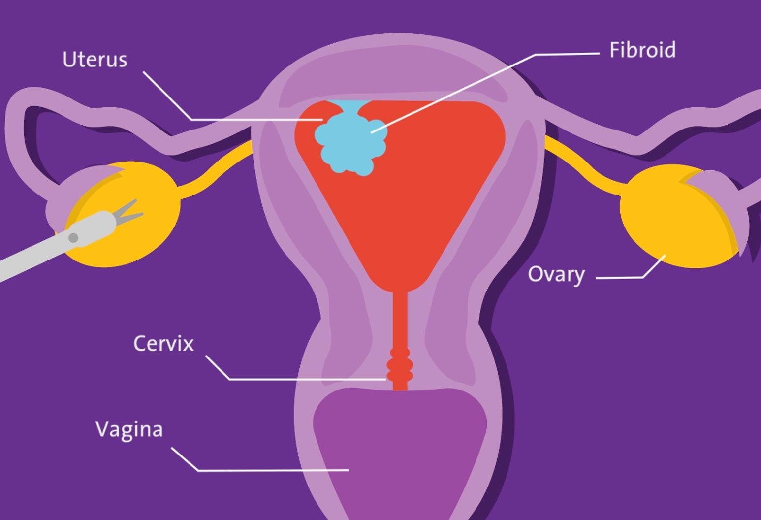 Illustration of the female reproductive tract, highlighting the uterus, fibroid, ovary, cervix and vagina.