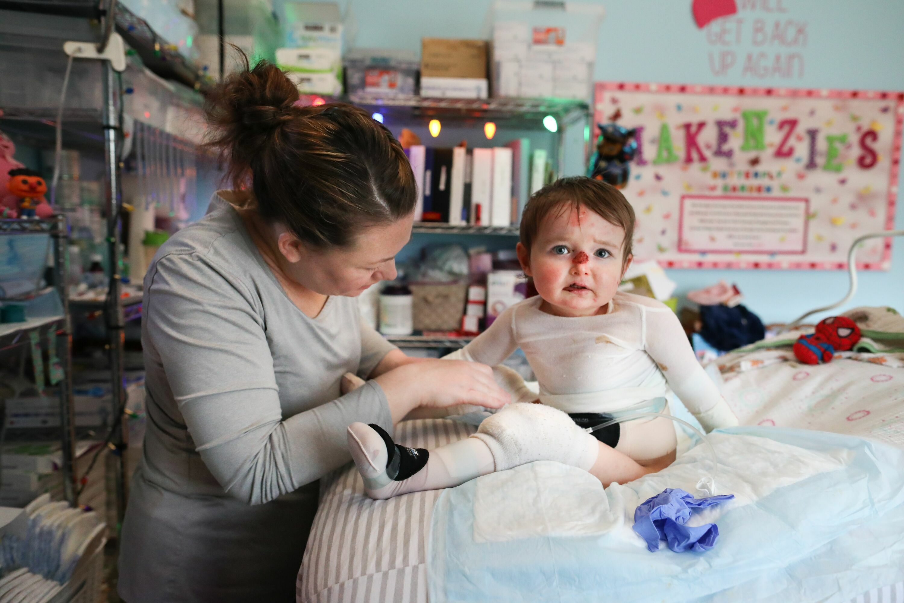 Mother bandages her young child with epidermolysis bullosa