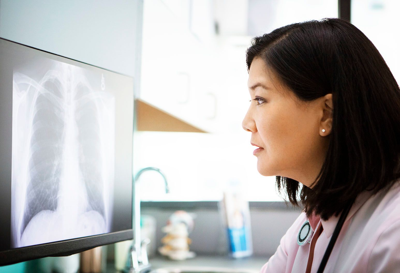 A female asian clinician with shoulder-length black hair looks at an x-ray of a spine on a screen.