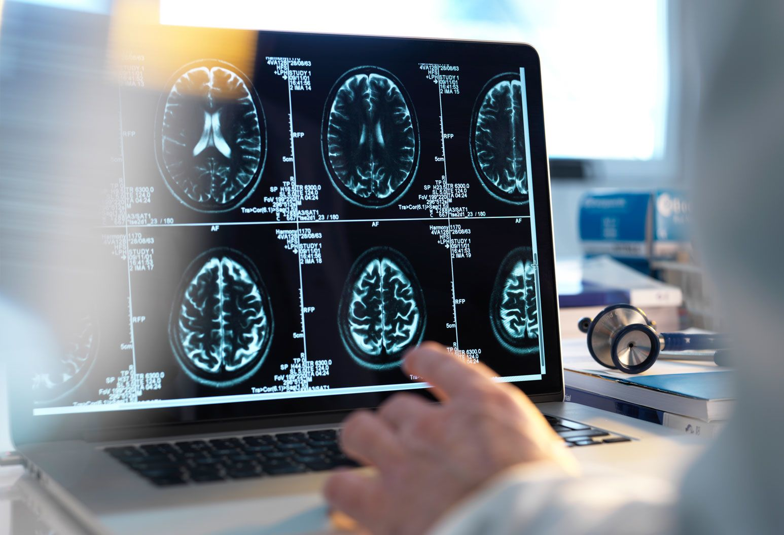 doctor is looking at multiple brain scans on a computer