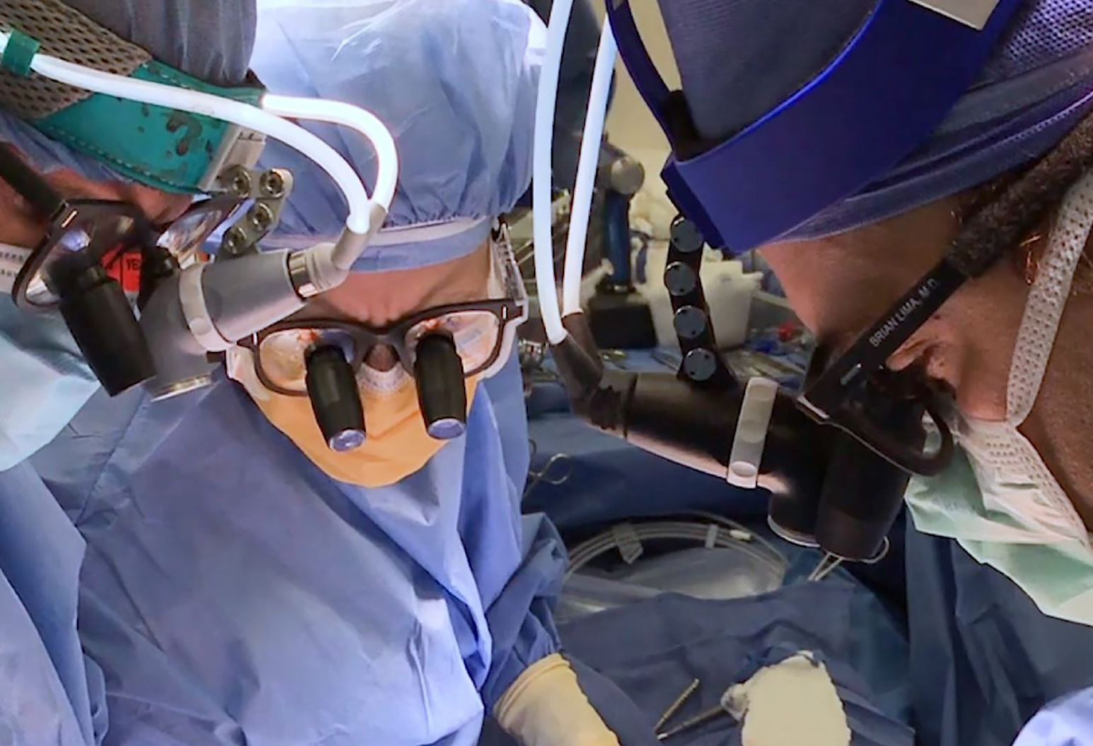 Brian Lima, MD, and his colleagues perform Long Island's first heart transplant in February 2018.