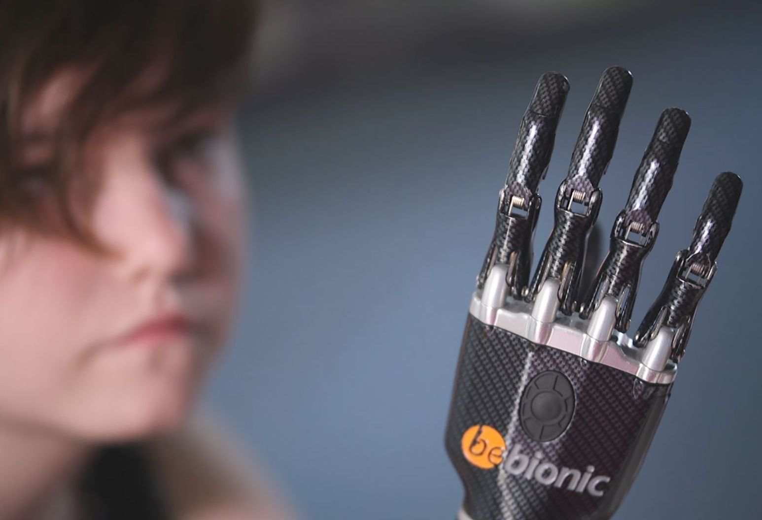 A picture of Brianna's bionic hand with her face in the background of the picture.