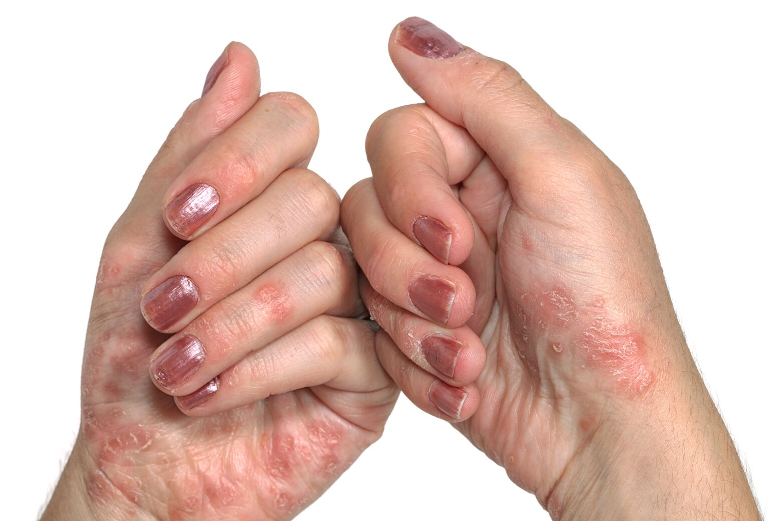 Two hands show eczema