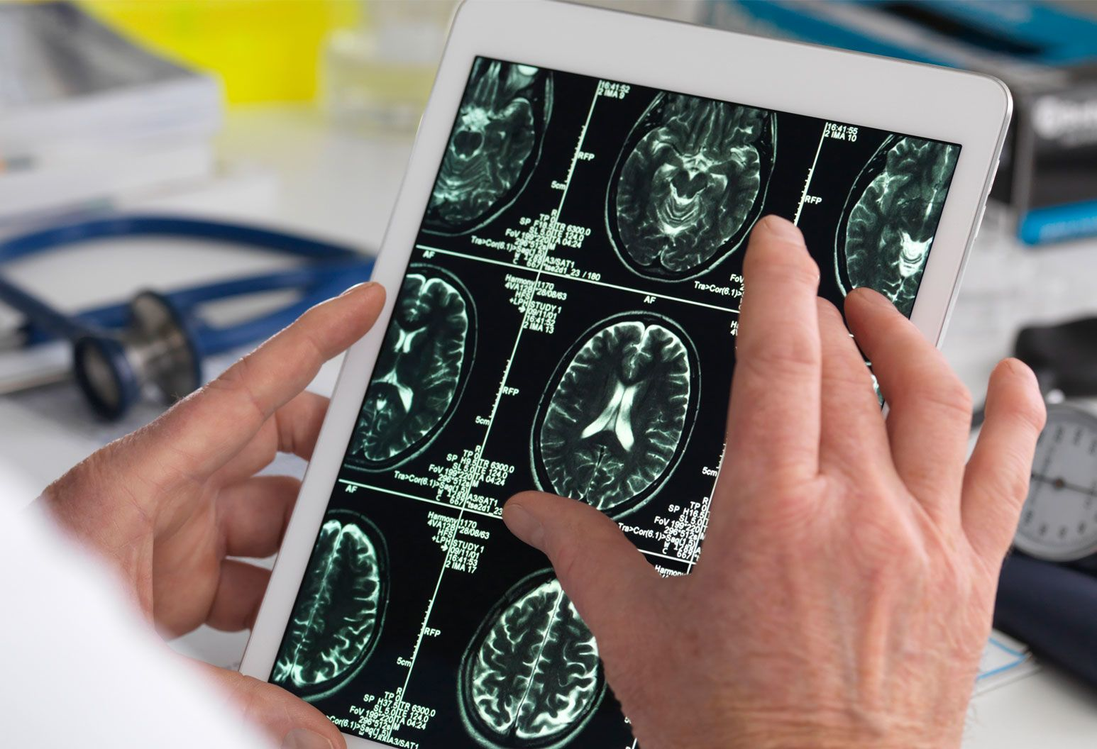 Close up view of a brain scan on a hand held tablet