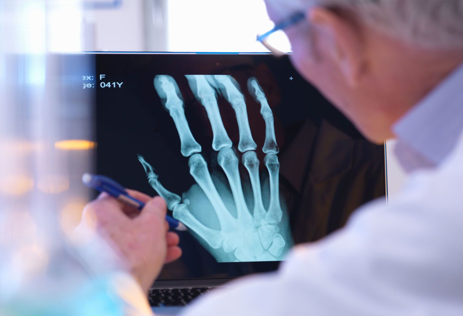 A doctor wearing a white lab coat looks at an x-ray of a hand on a screen. He is pointing to a part of the bone with a pen.