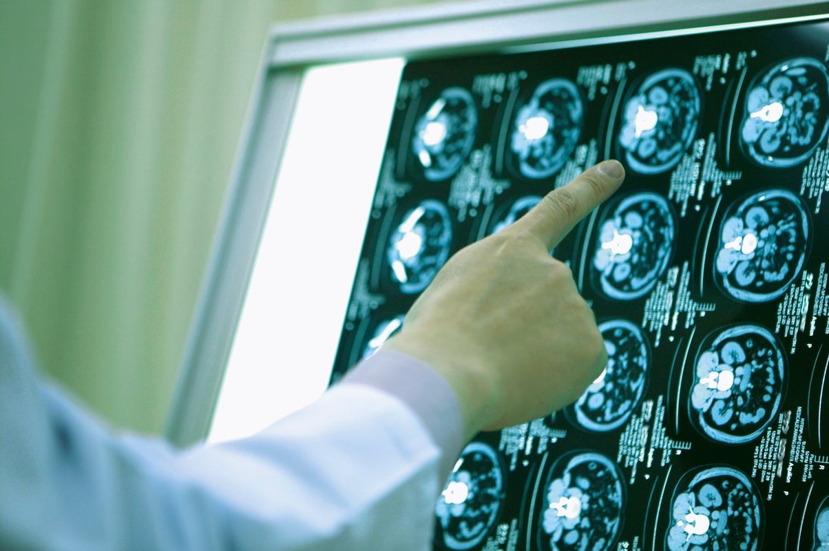 A doctor looks at diagnostic imaging