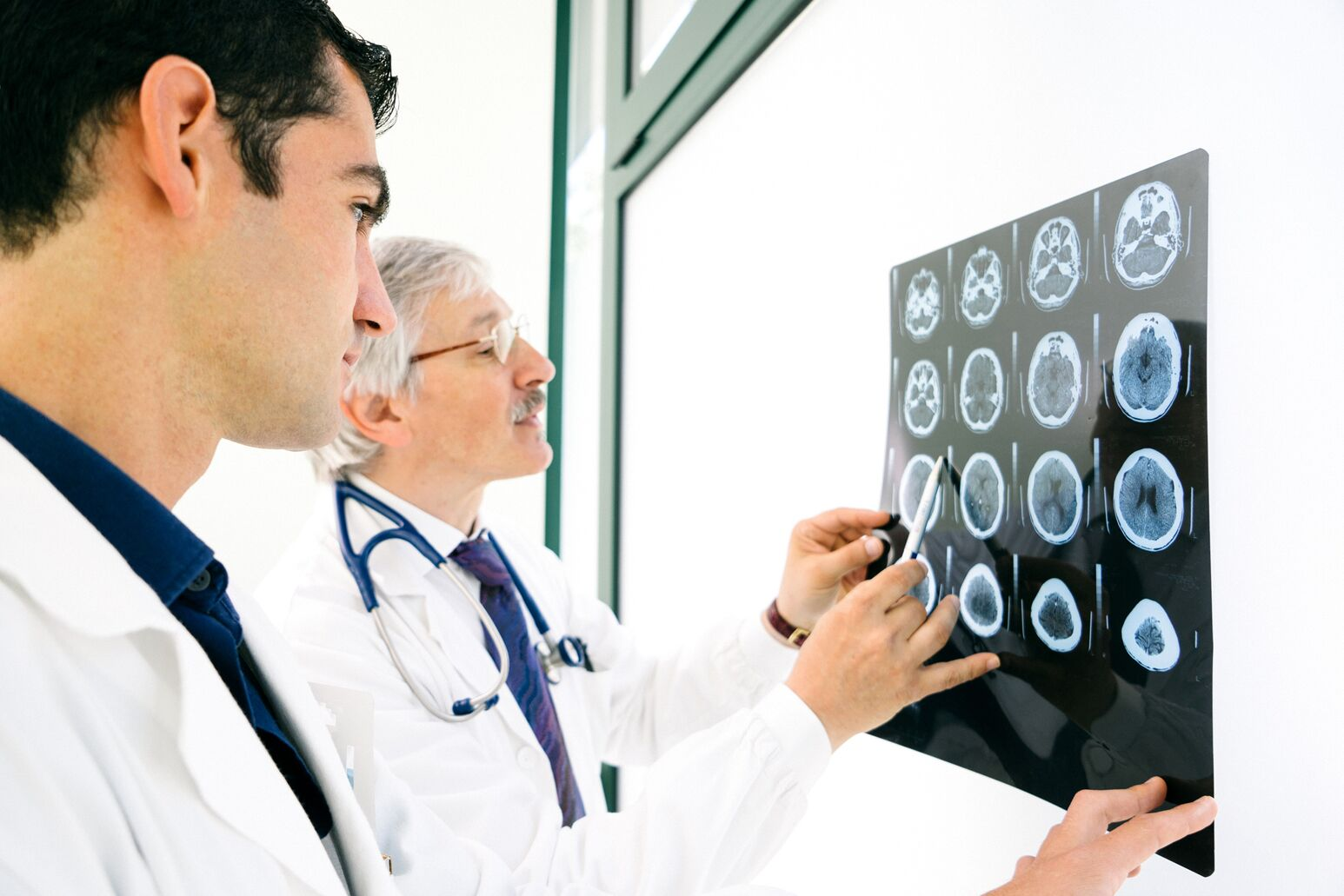 Docs look over brain scans