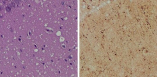 Prion-images